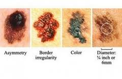 The signs of melanoma