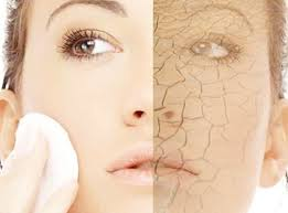 dry skin 2